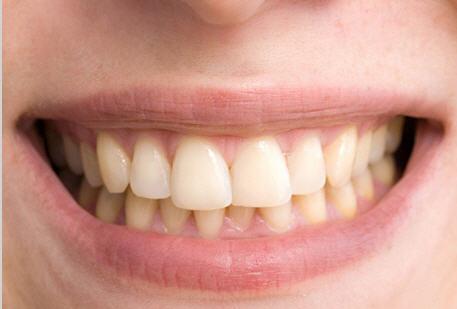 Original teeth image