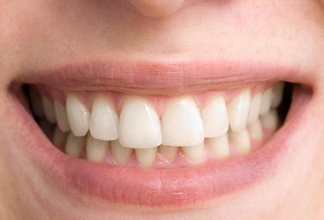 Whiten Teeth Action
